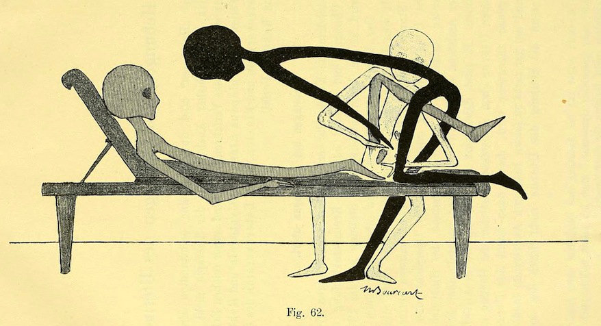Gynecology exercises with grey aliens from 1895.