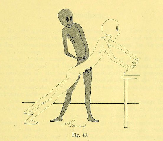 Gynaecology exercises with grey aliens from 1895